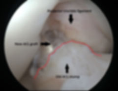 Completed ACL reconstruction. Graft emerging from old ACL stump on tibia (leg bone) and secured into bone tunnel on femur (thigh bone). Red line shows the edge of old ACL