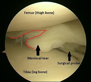 Normal meniscus