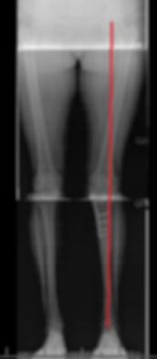 After high tibial osteotomy, alignment X-ray shows the weight-bearing axis from hip to ankle (marked in red) now passes through the unworn outside part of the knee, improving pain.