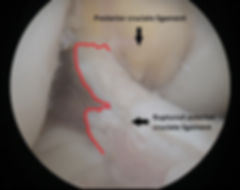 Photograph of a ruptured ACL, torn edge outlined in red