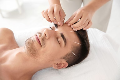 Cosmetic Acupuncture - Facial Rejuvenation, with Sarah Bristow