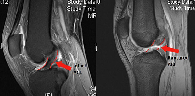 MRI's showing normal and ruptured ACLs