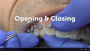 Opening & Closing.png