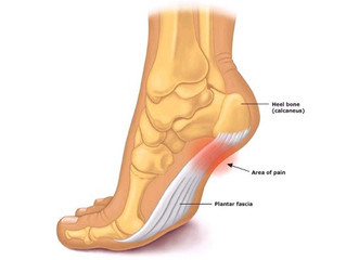 Pain in the bottom of your foot?
