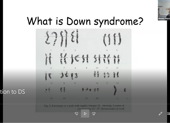 Introduction to Down syndrome