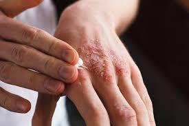 """濕疹不止是皮膚問題 - 新城財經台""""健康地球人""""       2020/07/04訪談"""