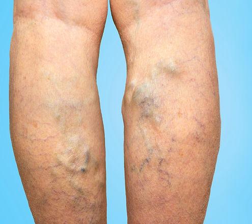 Varicose veins on a female legs_edited.j