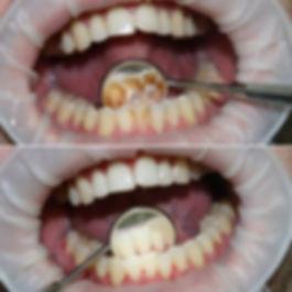 professionalnaya-chistka-zubov-harkov-ce