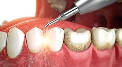 ultrazvukovaja-chistka-zubov.jpg