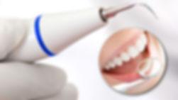 chistka-zubov-v-kieve-2.jpg