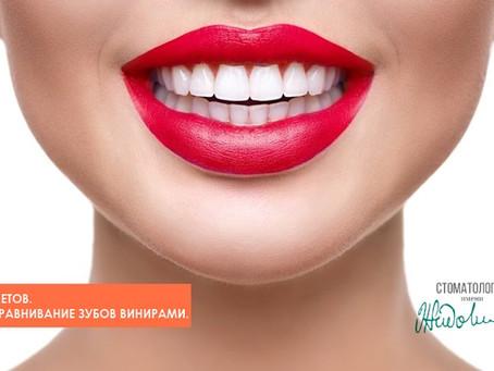 Без Брекетов. Выравнивание зубов винирами.