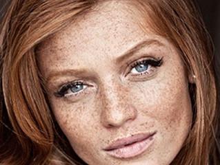 Let your Freckles Shine