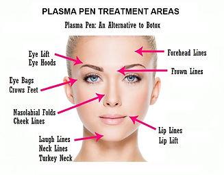 Plasma-Pen-Wrinkle-Treatments.jpg