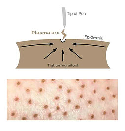 plasma pen diagram.jpg