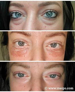 plasma eyes B&A.jpg