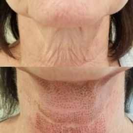 plasma neck.jpg