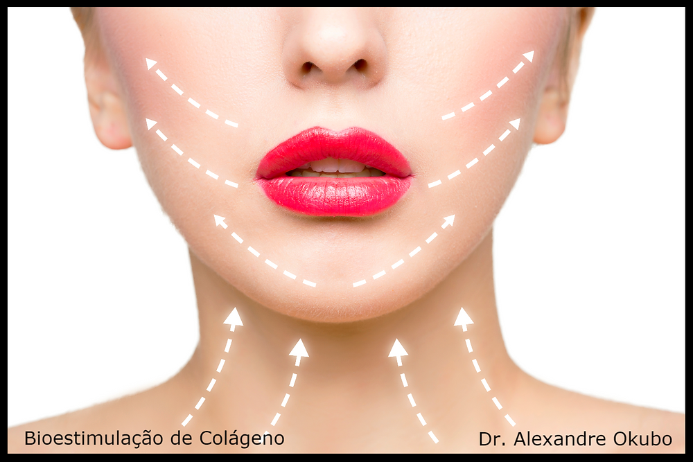 Bioestimulação de Colágeno - rosto e pescoço