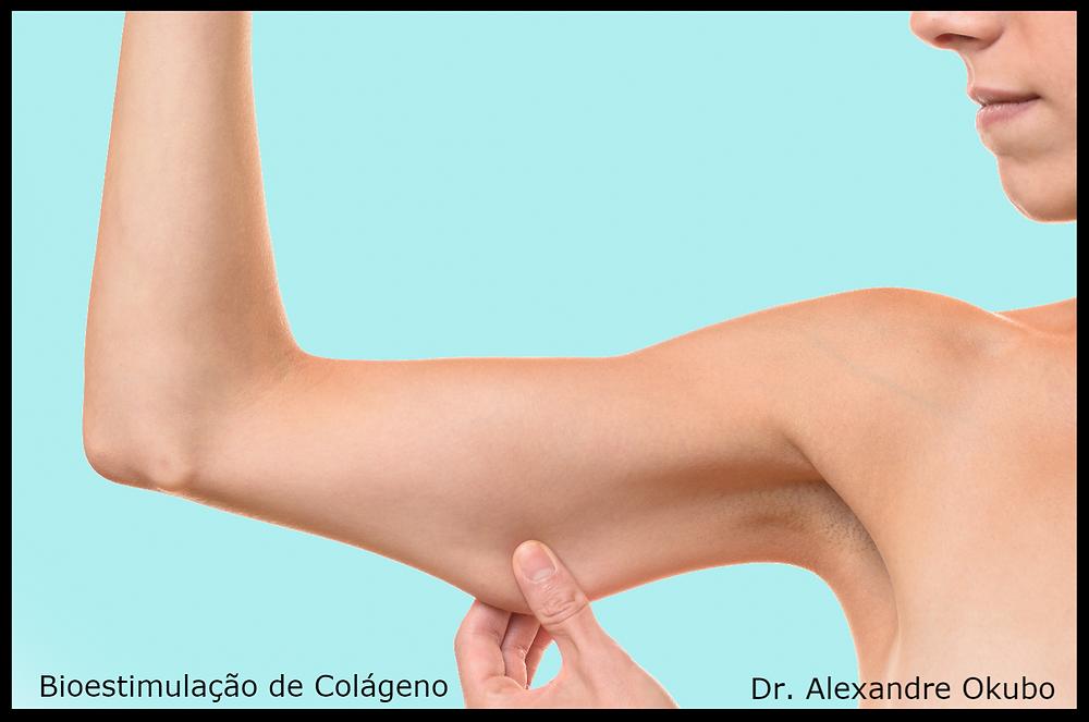 Bioestimulação de Colágeno - flacidez de braço