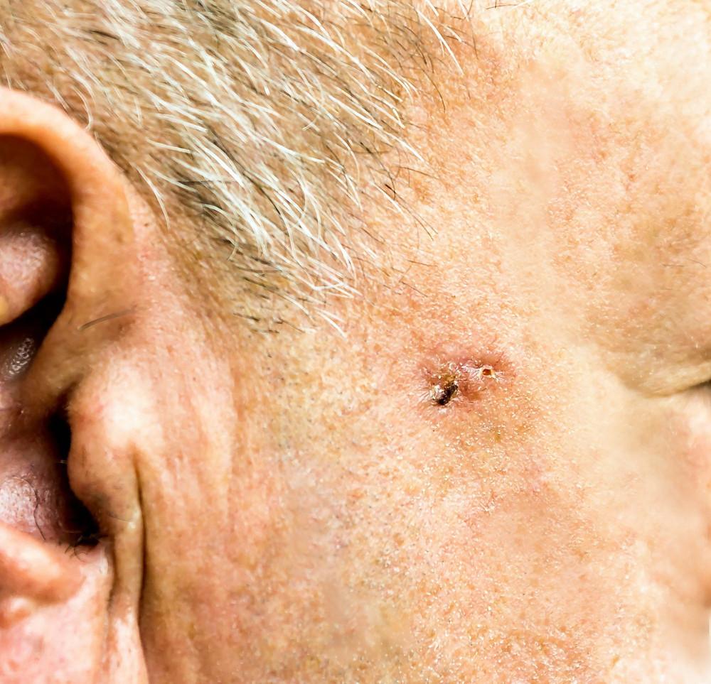 Imagem de Carcinoma Basocelular. Crédito: Depositphotos