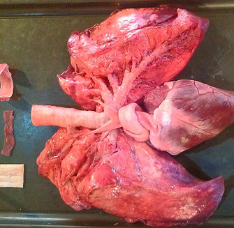 heart-and-lungs-8_edited.jpg