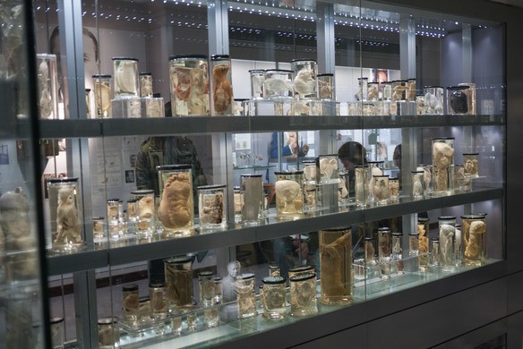 A trip to the Hunterian Museum, London