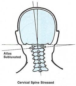 head ache atlas orthogonal