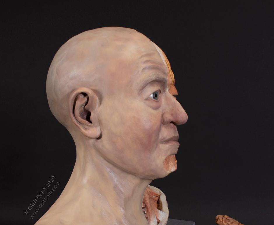 Myasthenia Gravis Wax Sculpture