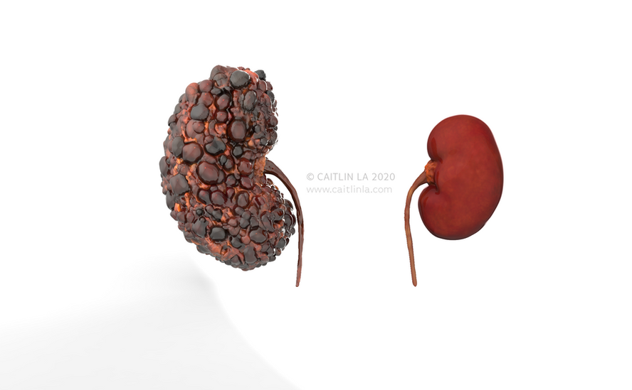 Polycystic and Healthy Kidney