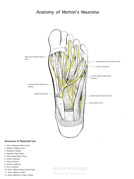 Dissection Drawing 'Anatomy of Morton's Neuroma'