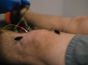 What's dry needling therapy