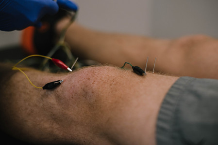 Many times to make the technique more comfortable or tolerable, we will hook the needles up to electrodes for intramuscular stimulation.