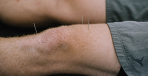 Dry Needling: What you need to know!