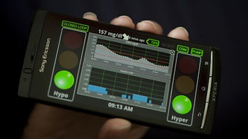 gizmodo-artificial-pancreas-jun-2012.jpg