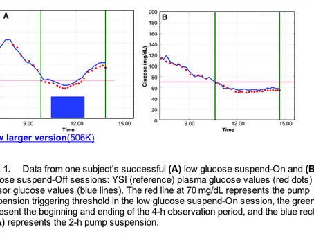 """Medtronic makes a first step towards """"closed loop"""" with """"low glucose suspend&#8221"""