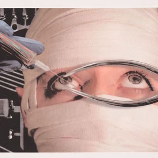 Retinal Implants