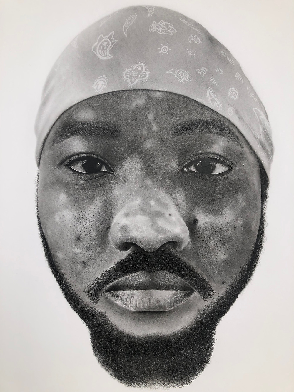 artist, vitiligo,pencil drawing, Nigerian, TikTok