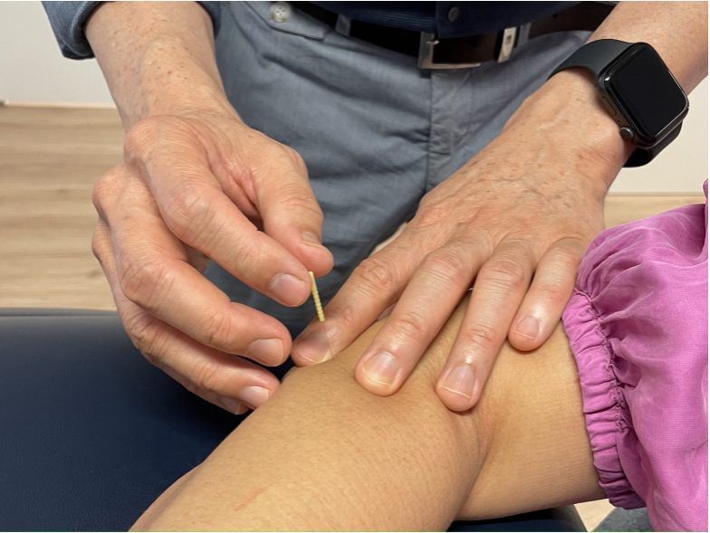 Tennis Elbow Physiotherapy   Wellbeing Physiotherapy Leederville