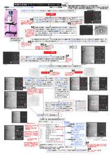 3-3角膜内皮検査