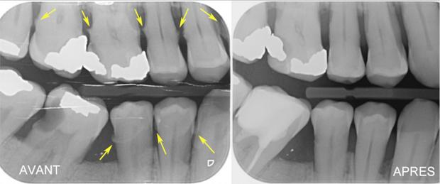 Traitement parodontal
