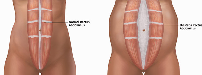 Diástasis abdominal: más que un problema estético