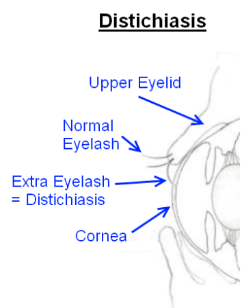 November 2017 Dachshund Eye Screening Summary