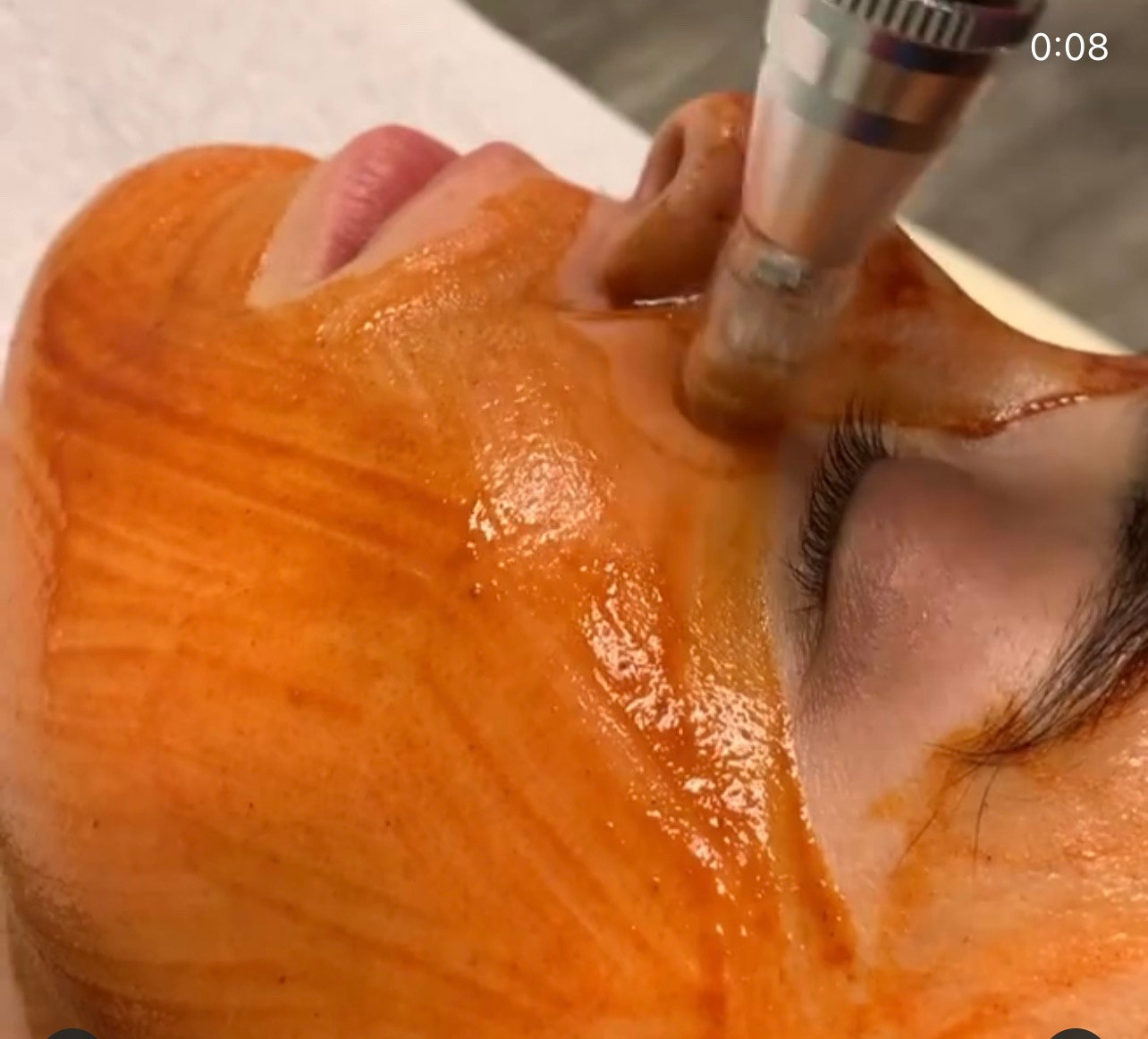Dermaplaning & Osmosis infusion