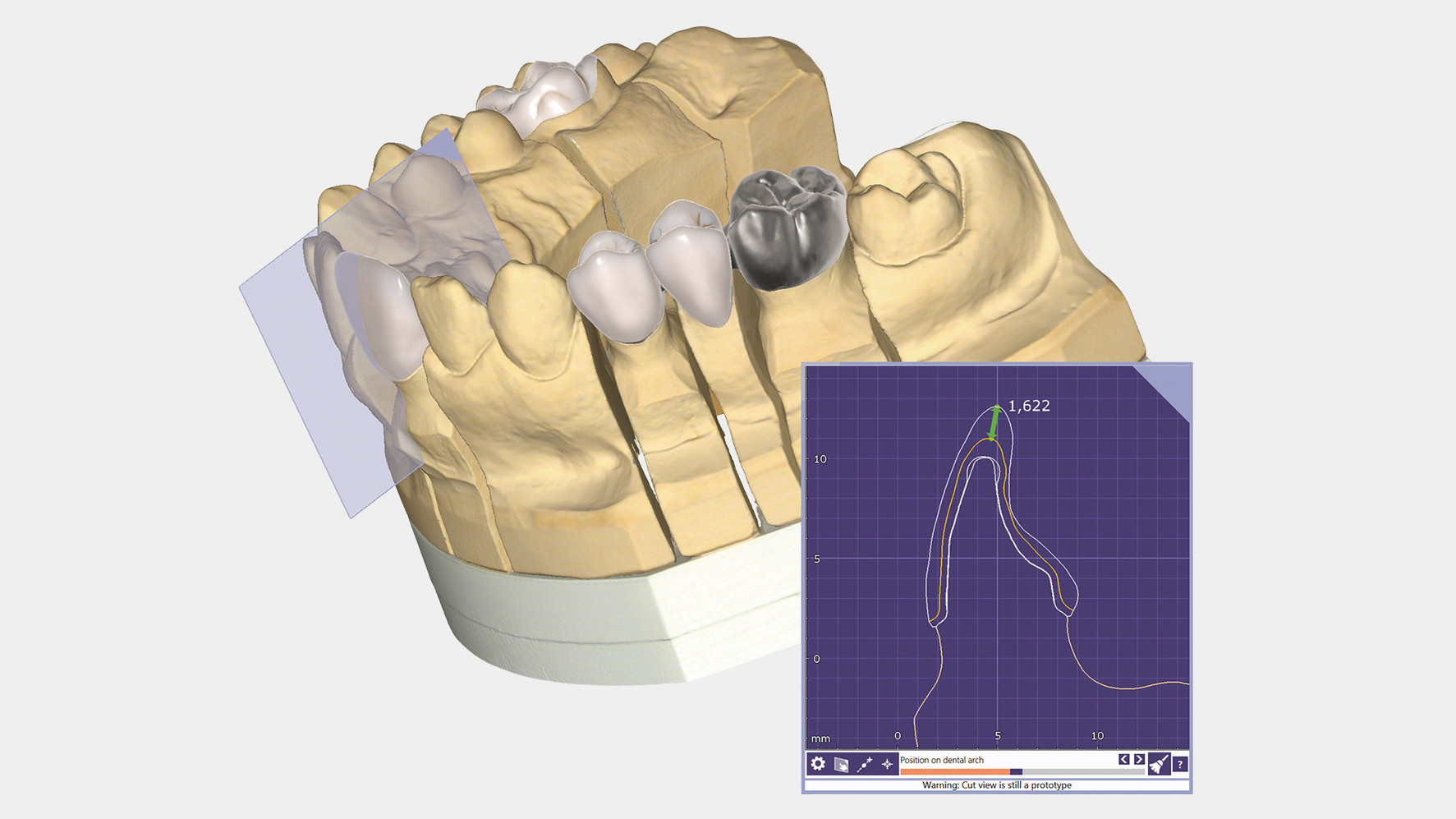 dentalcad_cutview.jpg