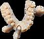 Stratasys' VeroDentPlus Dental Material (MED690) for 3D Printing