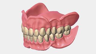 csm_addon_full-denture-module_93608eb569