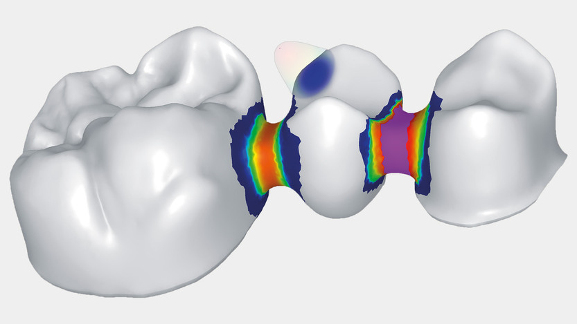 dentalcad_cross-section.jpg