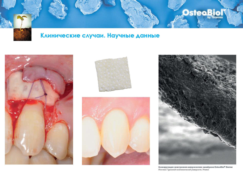 OsteoBiol - Костный Материал_page-0025.j