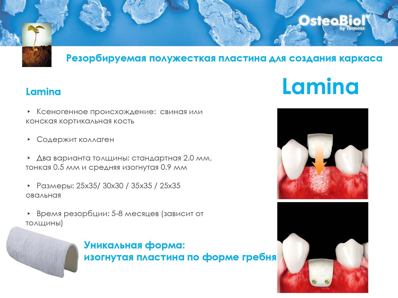 OsteoBiol - Костный Материал_page-0028.j