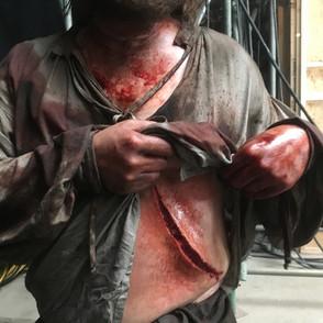 Sword wound