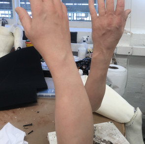 Severed arms